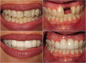 Bleaching and Porcelain Veneers Before and After Photo