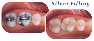 Photos of a silver filling and a tooth colored filling.