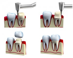 Drawing of the four stages of dental crown installation process