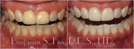 Before & After Porcelain Veneers | Dr. Benjamin Fiss | Chicago