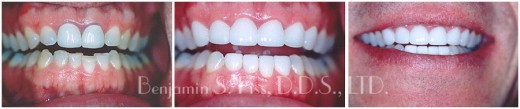 Before & After Teeth Whitening   Dr. Benjamin Fiss   Chicago