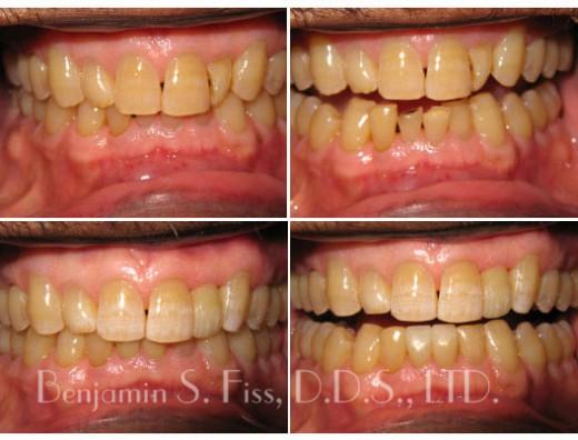 Before & After Dental Implants   Dr. Benjamin Fiss   Chicago