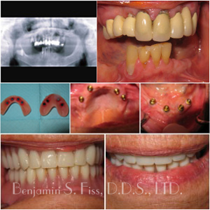 Before & After Dental Implants | Dr. Benjamin Fiss | Chicago