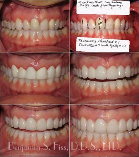 Before & After Porcelain Veneers   Dr. Benjamin Fiss   Chicago