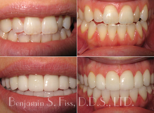chicago-porcelain-veneers-lrg
