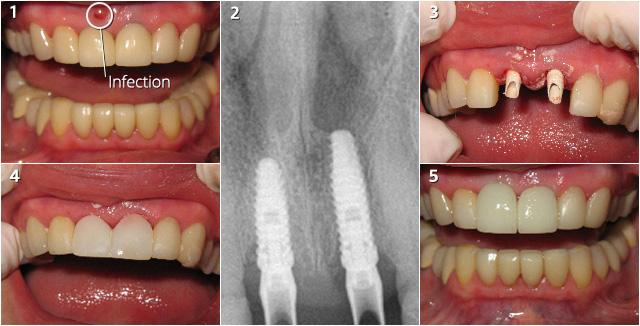 implants-231908