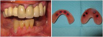 pt9_Dentures
