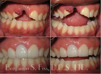 Dental Implants by Dr. Fiss
