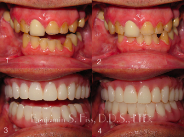 All On 4 Before and After Teeth Photos