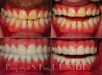 amazing makeover involved placing 20 veneers