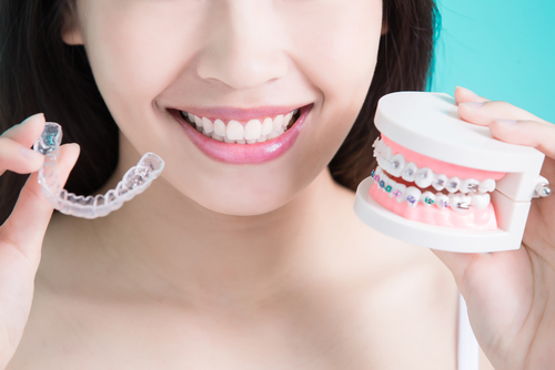 woman choice different braces-img-blog