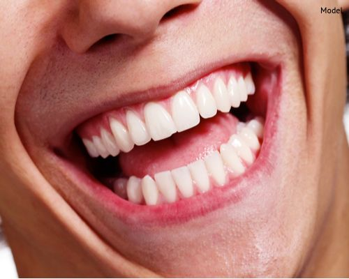 Close up shot of awesome healthy teeth smile