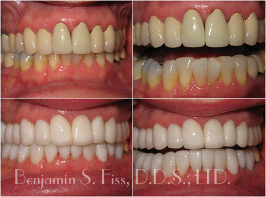 Twenty all porcelain crowns were placed-replacing old and unsightly porcelain to metal crowns