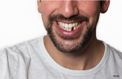 Male model with a beard and mustache smiling missing a bottom tooth
