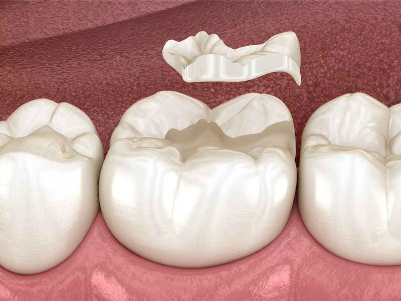 3D illustration of human teeth and ceramic inlay over tooth.